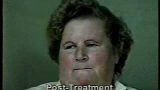 LSVT LOUD Speech Therapy for Parkinson disease